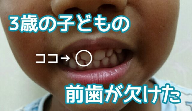 3歳子どもが転んで前歯が欠けてしまった!すぐに歯医者さんへ行こう
