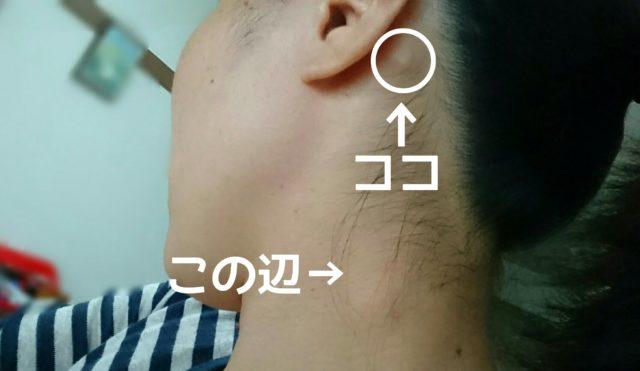 の 腫れ 耳 後ろ